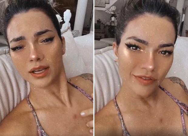 Kelly Key fala sobre câncer de pele   Foto: Reprodução/Instagram
